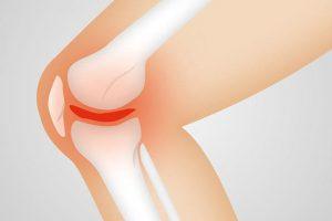 Andullationstherapie Arthrose